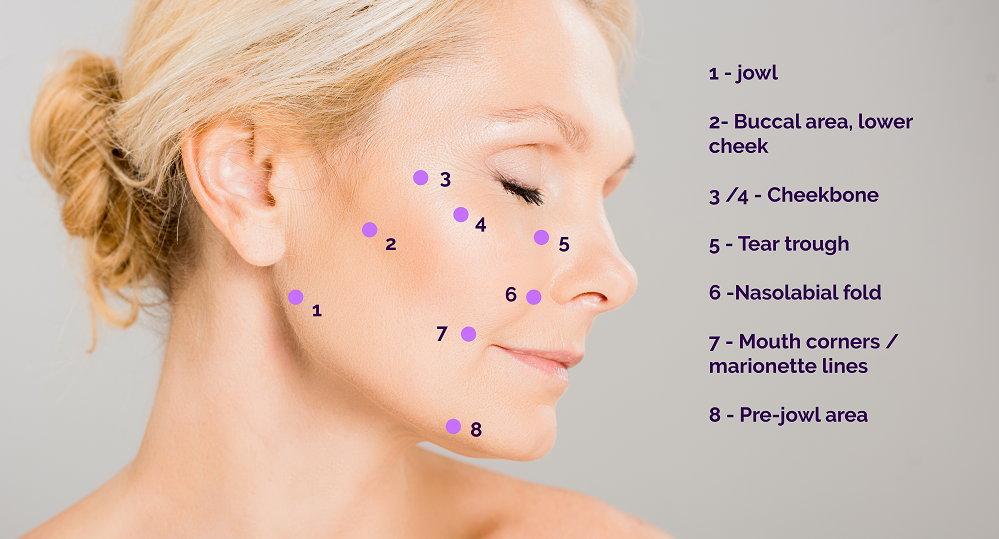 facelift fillers - 8 point
